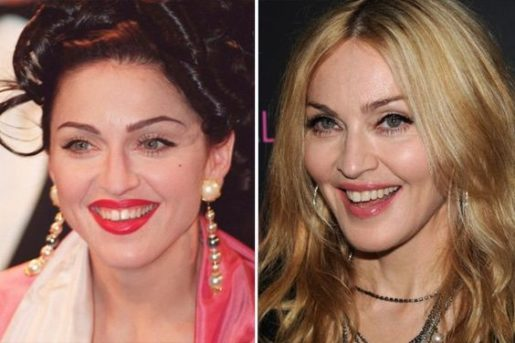 madonna before after
