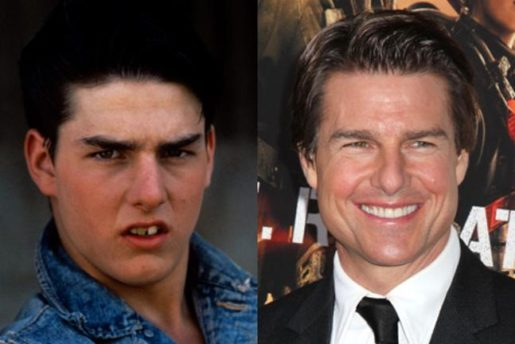 Smile Make Over Tom Cruise