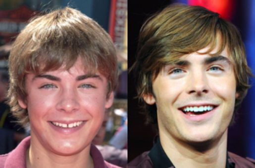 Zac Efron Smile Makeover